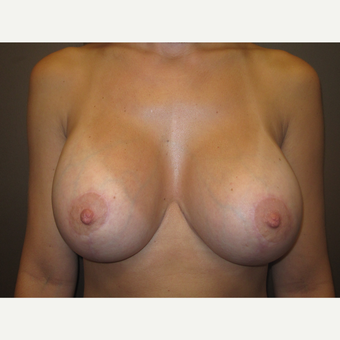 25-34 year old woman treated with Breast Lift with Implants after 3604618