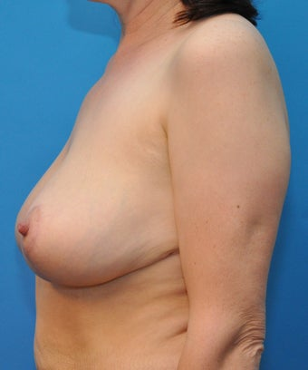 Breast reduction 668550