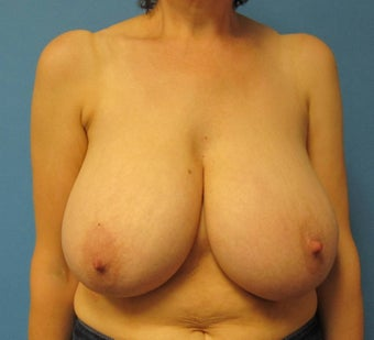 Breast reduction before 668550