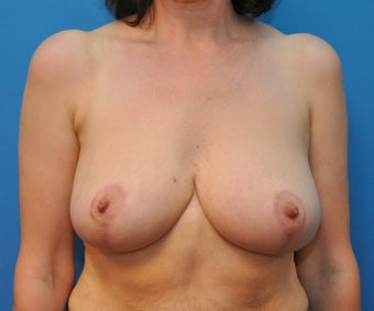 Breast reduction after 668550