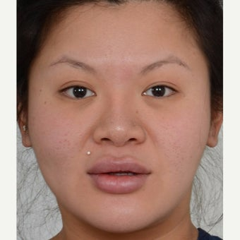 25-34 year old woman treated with Masseter Botox for Jaw Reduction before 2561314