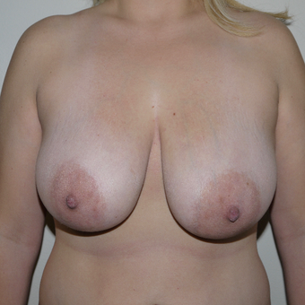 25-34 year old woman treated with Breast Reduction before 2977566