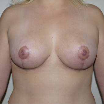 25-34 year old woman treated with Breast Reduction after 2977566