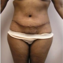 45-54 year old woman treated with Tummy Tuck after 1766702