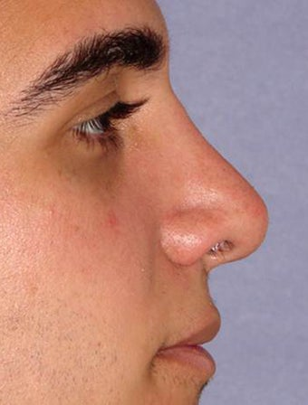 Non-Surgical Nose Reshaping with Filler