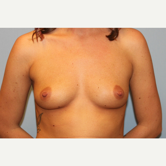 25-34 year old woman treated with Breast Augmentation before 3570213