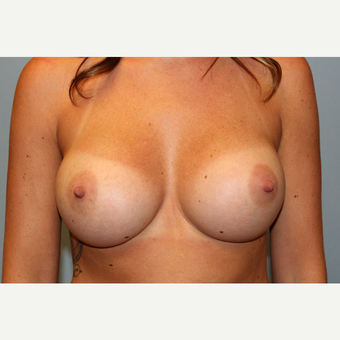 25-34 year old woman treated with Breast Augmentation after 3570213