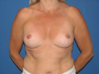 Breast reduction/breast lift after 347382