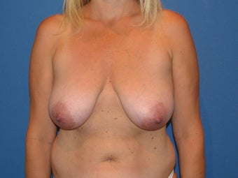 Breast reduction/breast lift before 347382