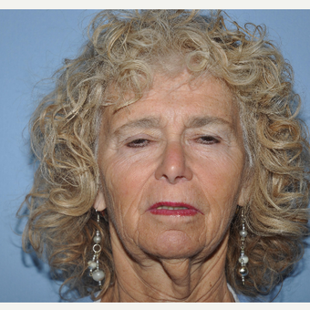 65-74 year old woman treated with Facelift before 3702449