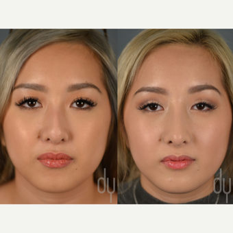 Asian Rhinoplasty with rib cartilage and DCF before 3129826
