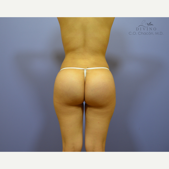 18-24 year old woman treated with Butt Implants after 3329529