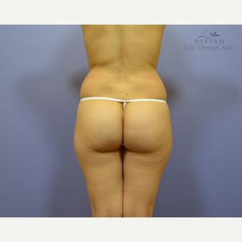 18-24 year old woman treated with Butt Implants before 3329529
