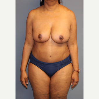 45-54 year old woman treated with Breast Reduction after 3557889