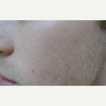 Cystic acne scar treatment after 3685481