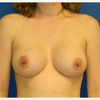 18-24 year old woman treated with Breast Augmentation after 2934441
