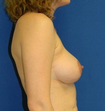 18-24 year old woman treated with Breast Augmentation 2934441
