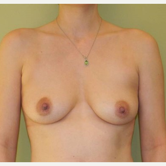 18-24 year old woman treated with Breast Augmentation before 2934441