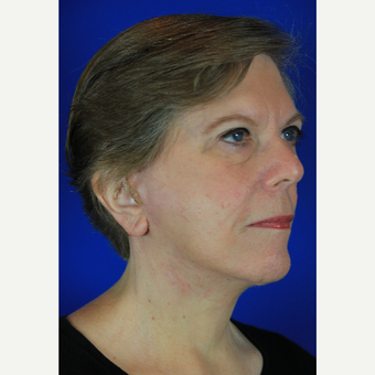 Facelift, Brow Lift after 3684824