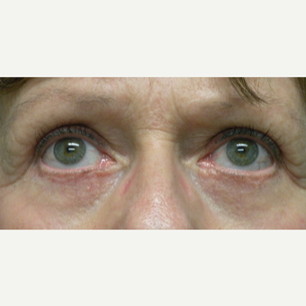 55-64 year old woman treated with Eye Bags Treatment after 3802380