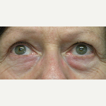 55-64 year old woman treated with Eye Bags Treatment before 3802380