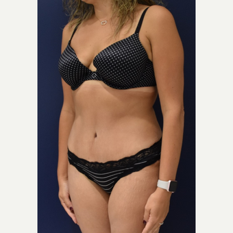 35-44 year old woman treated with Liposuction after 3489810