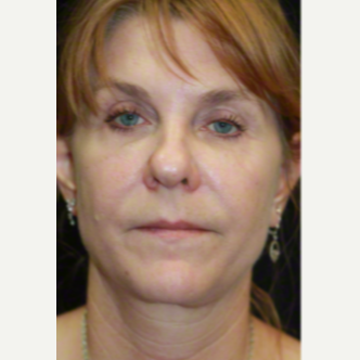 50 year old woman treated with SMAS Facelift after 3629679