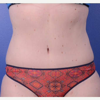 35-44 year old woman treated with Tummy Tuck after 2993927
