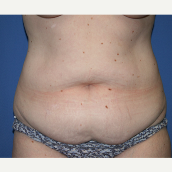 35-44 year old woman treated with Tummy Tuck before 2993927