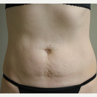 45-54 year old woman treated single SculpSure after 3014969