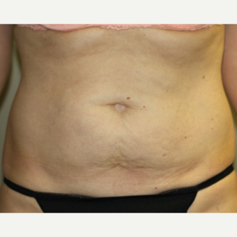45-54 year old woman treated single SculpSure before 3014969