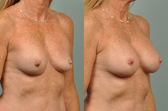 51 year old female implant removal and replace  before 1172012