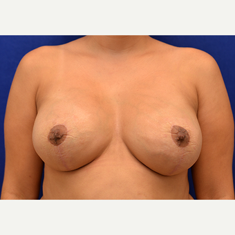 25-34 year old woman treated with Breast Implant Revision after 3061161