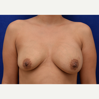 25-34 year old woman treated with Breast Implant Revision before 3061161