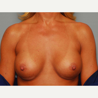 42 y/o Inframammary Sub Muscular Breast Augmentation after 3066114