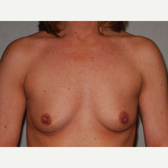 42 y/o Inframammary Sub Muscular Breast Augmentation before 3066114