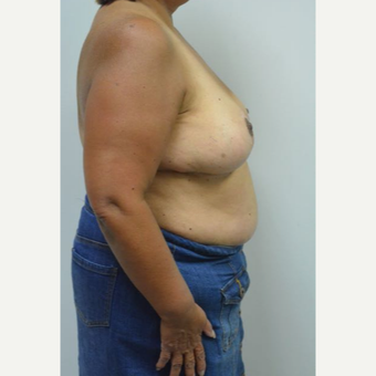 55-64 year old woman treated with Breast Reduction and liposuction of the axilla after 3383025