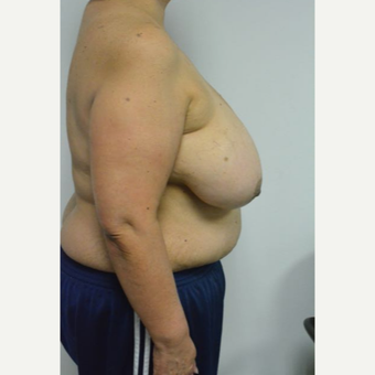 55-64 year old woman treated with Breast Reduction and liposuction of the axilla before 3383025