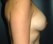 Breast Implants after 3544994