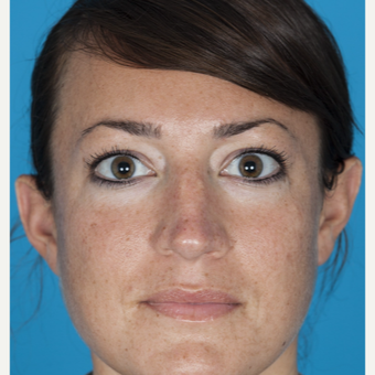 25-34 year old woman treated with Nose Surgery before 3050265