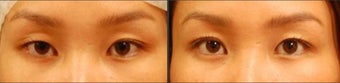Asian Eyelid Surgery for Uneven Crease before 894626