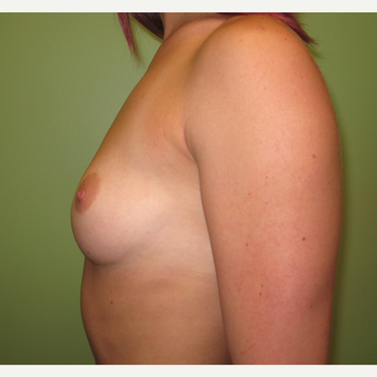 18-24 year old woman treated with Breast Implants before 3418367