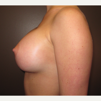 18-24 year old woman treated with Breast Implants after 3418367