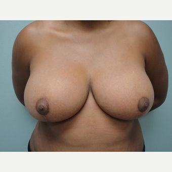 35-44 year old woman treated with Breast Reduction after 3823230