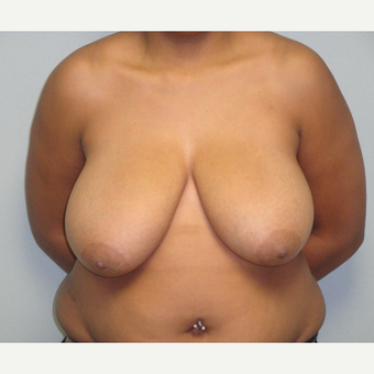 35-44 year old woman treated with Breast Reduction before 3823230