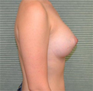 22 year old female breast augmentation 1342391