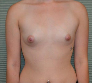 22 year old female breast augmentation before 1342391