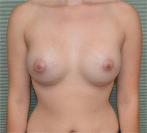 22 year old female breast augmentation after 1342391