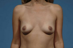 Breast augmentation before 132550