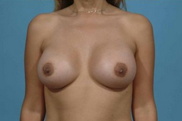 Breast augmentation after 132550